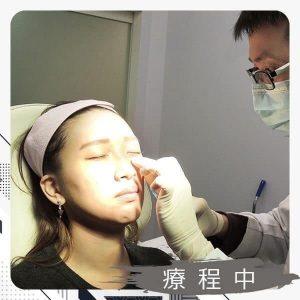 玻尿酸補淚溝+蘋果肌-療程中