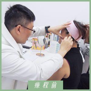 林俞萱-鈴鐺線埋線拉提-療程前