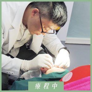 林俞萱-鈴鐺線埋線拉提-療程中