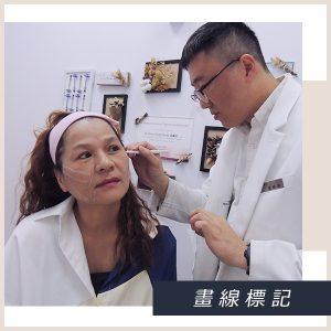 高妙娟-鈴鐺埋線拉提-療程中畫線