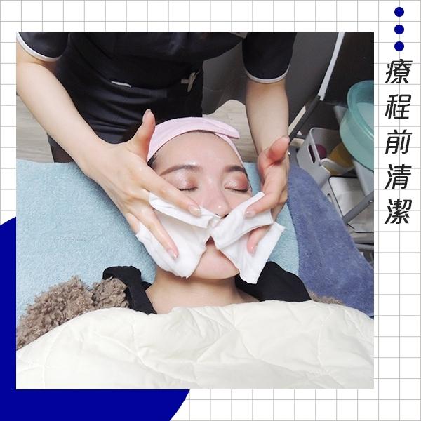 江芷瑄-舒顏萃精雕全臉-療程前清潔