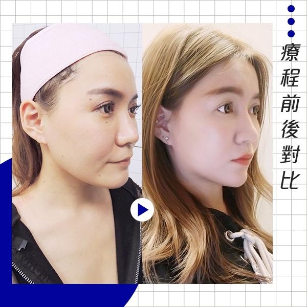 江芷瑄-舒顏萃精雕全臉-術後對比
